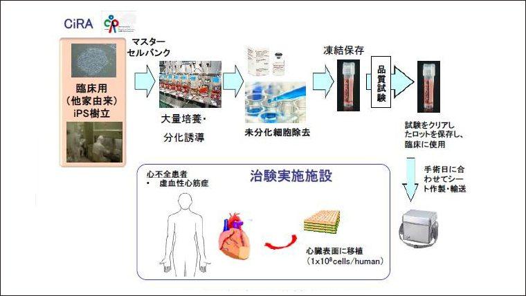 大阪大学がiPS細胞から作製した心筋細胞シートの医師主導治験を実施 ~重症心筋症の治療に向けて